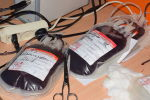 Образцы крови, фото из архива