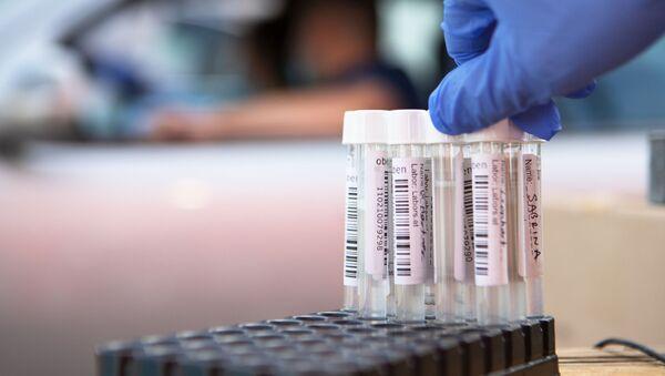 Тест на коронавирус, фото из архива - Sputnik Азербайджан