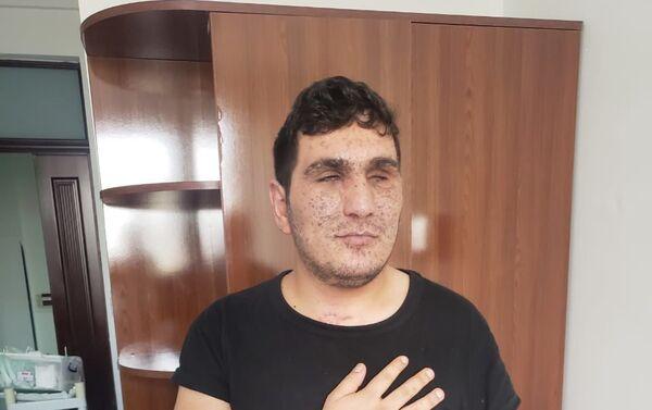 Один из раненых во время войны - Sputnik Азербайджан