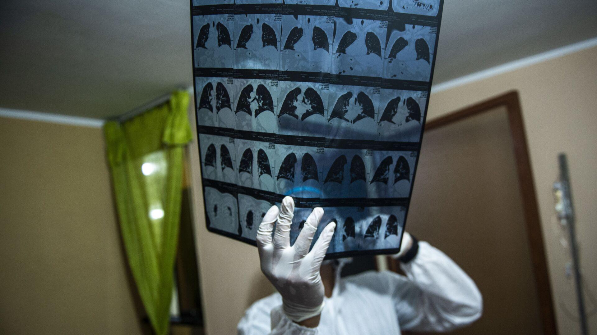 Tibb işçisi əlində ağ ciy\rin rentgenini tutub, arxiv şəkli - Sputnik Azərbaycan, 1920, 14.10.2021