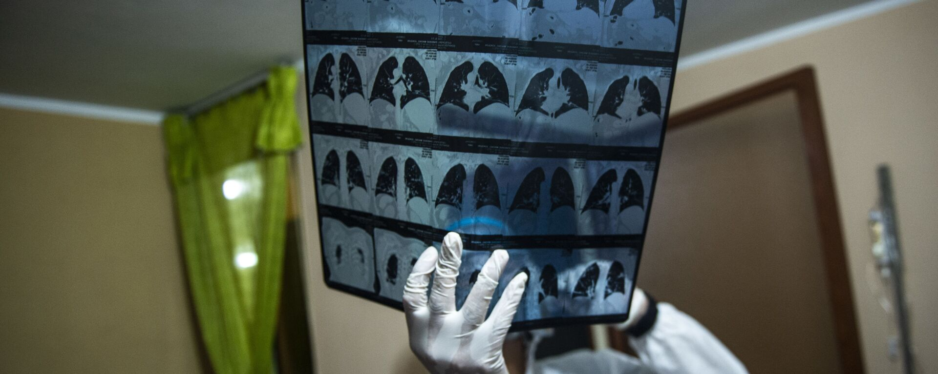 Медик с рентгеном (МРТ) легких, фото из архива - Sputnik Азербайджан, 1920, 19.03.2021