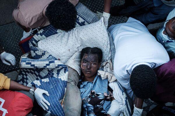 Раненая жительница деревни Тогоги в Эфиопии, пострадавшая от авиаудара - Sputnik Азербайджан