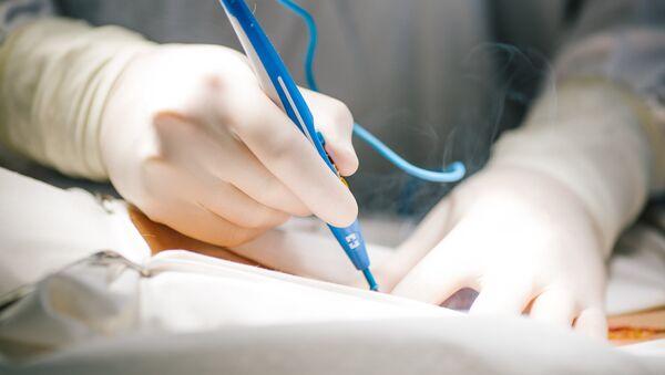 Операция по удалению злокачественной опухоли, фото из архива - Sputnik Azərbaycan
