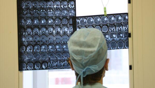 Рентгеновские снимки головного мозга человека, фото из архива - Sputnik Азербайджан