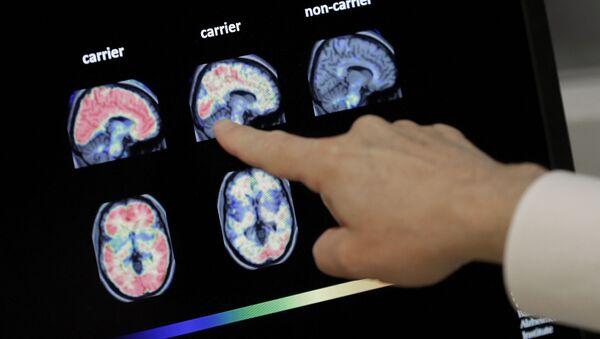 Доктор Уильям Берк осматривает сканирование мозга ПЭТ в Баннерном институте Альцгеймера в Фениксе. - Sputnik Азербайджан