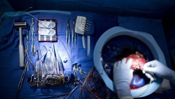 Трансплантация почки, фото из архива - Sputnik Азербайджан
