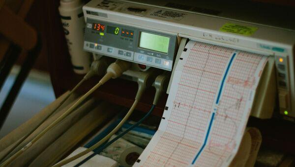 Электрокардиография, фото из архива - Sputnik Азербайджан