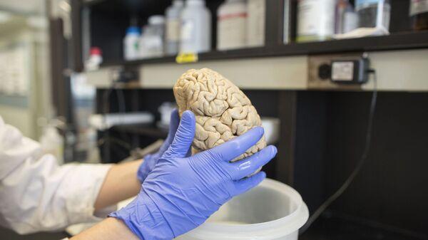 Мозг человека в лаборатории, фото из архива - Sputnik Azərbaycan