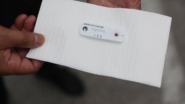 Koronavirus testi, arxiv şəkli - Sputnik Азербайджан