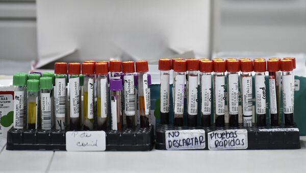 Образцы крови для анализа COVID-19, фото из архива - Sputnik Азербайджан